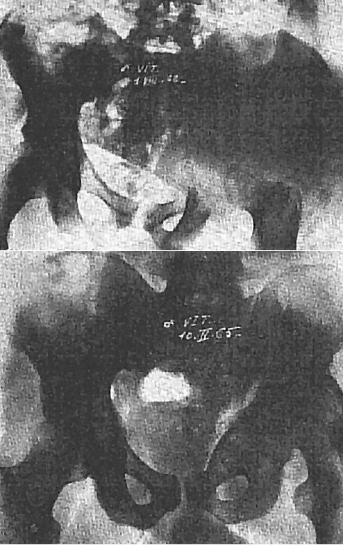 x-ray--z